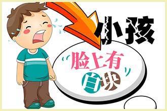 孩子吃的路边零食你知道对皮肤白斑有什么危害吗